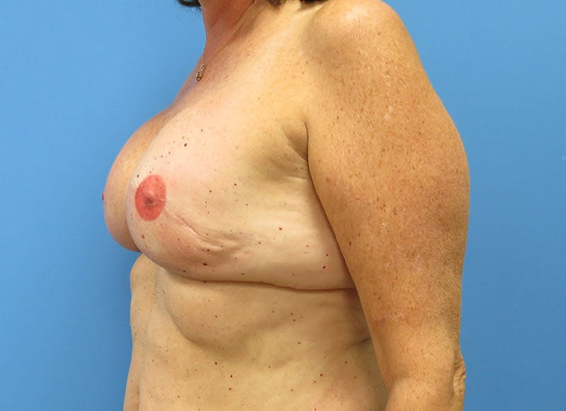 Breast Reconstruction - Implant Gallery - Patient 3833949 - Image 8