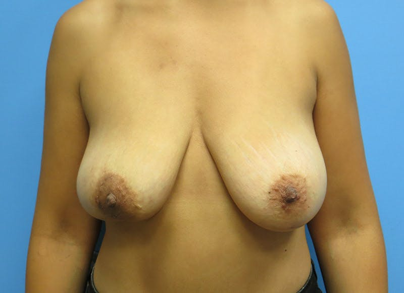 Breast Reconstruction - Implant Gallery - Patient 3833951 - Image 1
