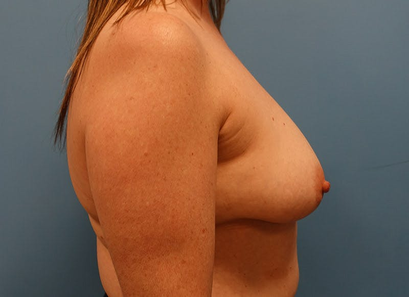Breast Reconstruction - Implant Gallery - Patient 3833950 - Image 5