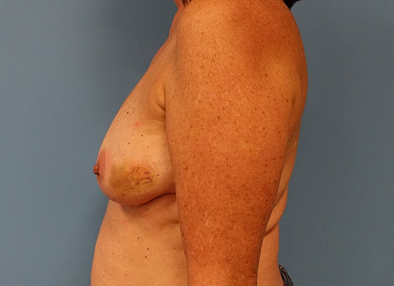 Breast Reconstruction - Implant Gallery - Patient 3833949 - Image 9