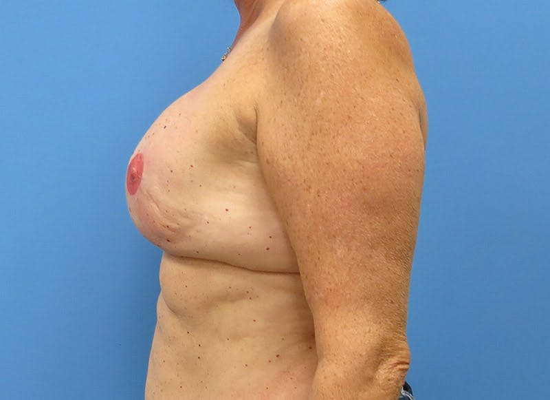 Breast Reconstruction - Implant Gallery - Patient 3833949 - Image 10