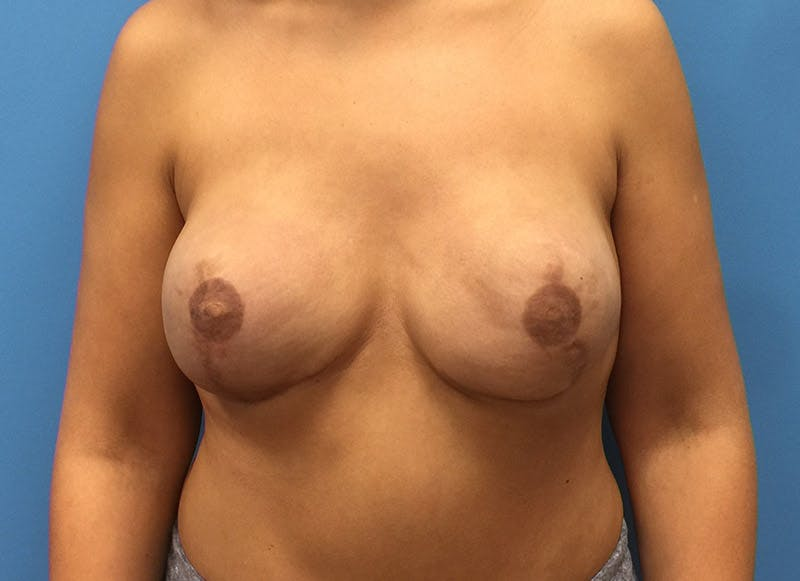 Breast Reconstruction - Implant Gallery - Patient 3833951 - Image 2