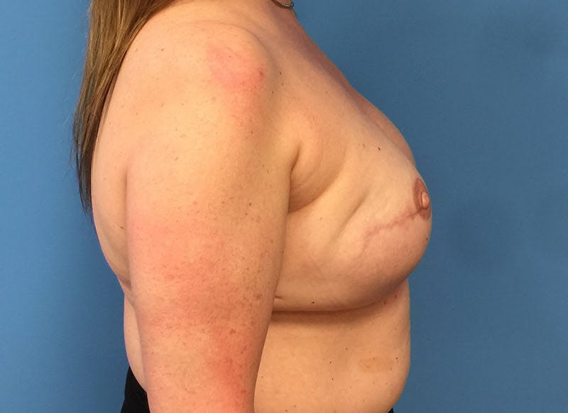 Breast Reconstruction - Implant Gallery - Patient 3833950 - Image 6