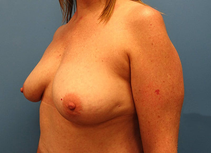 Breast Reconstruction - Implant Gallery - Patient 3833950 - Image 7