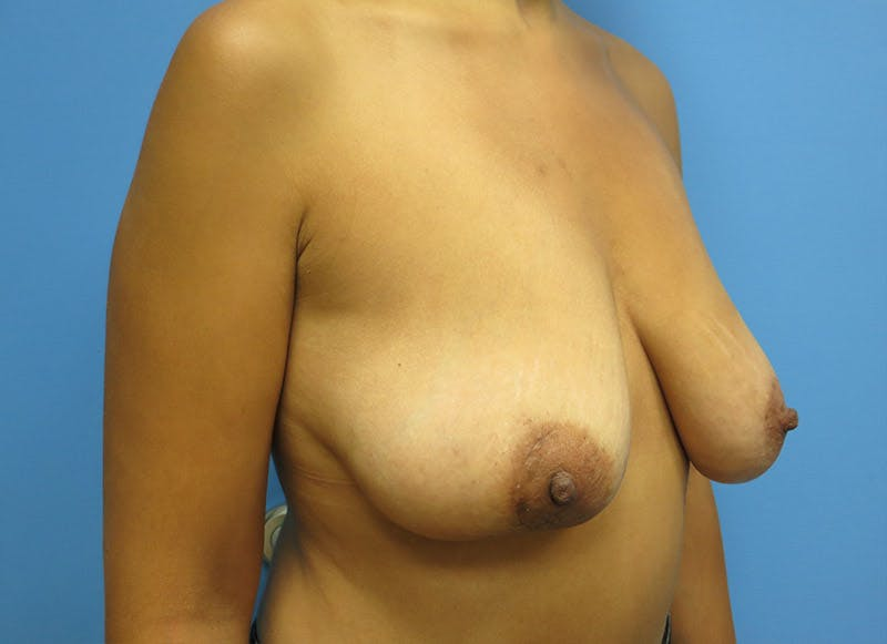 Breast Reconstruction - Implant Gallery - Patient 3833951 - Image 3