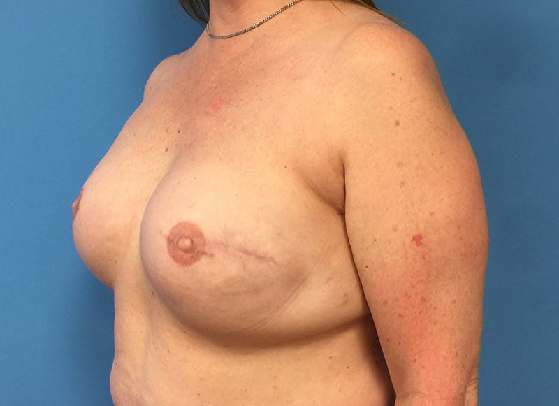 Breast Reconstruction - Implant Gallery - Patient 3833950 - Image 8