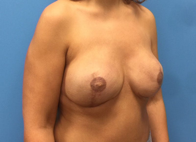 Breast Reconstruction - Implant Gallery - Patient 3833951 - Image 4