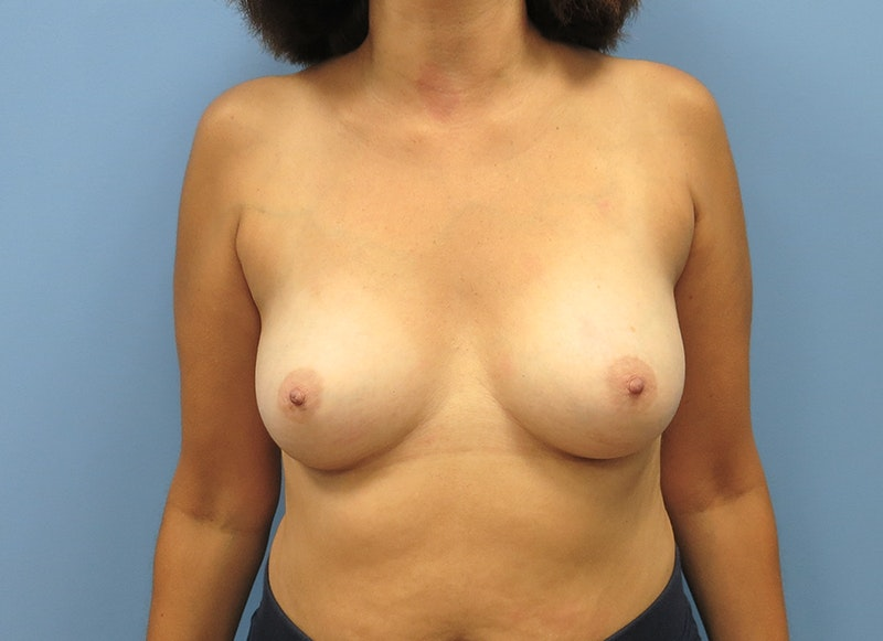 Breast Reconstruction - Implant Gallery - Patient 3833952 - Image 1