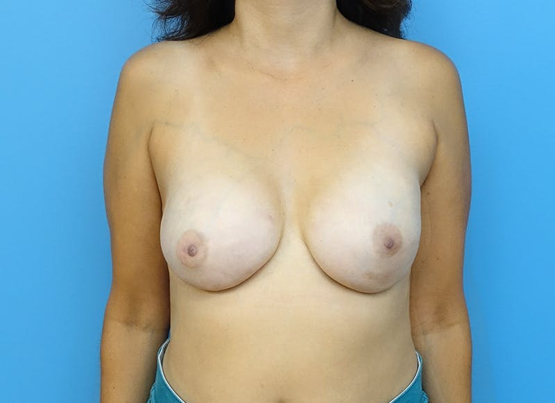 Breast Reconstruction - Implant Gallery - Patient 3833952 - Image 2
