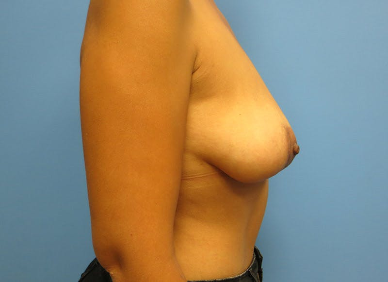 Breast Reconstruction - Implant Gallery - Patient 3833951 - Image 5