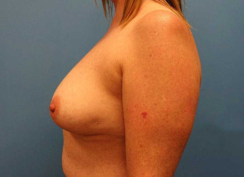 Breast Reconstruction - Implant Gallery - Patient 3833950 - Image 9