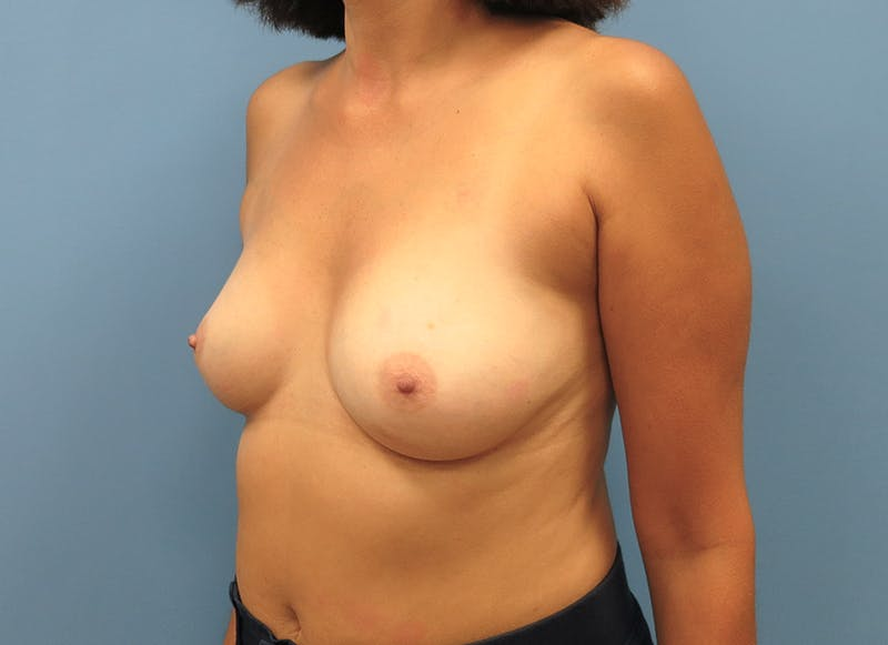 Breast Reconstruction - Implant Gallery - Patient 3833952 - Image 3