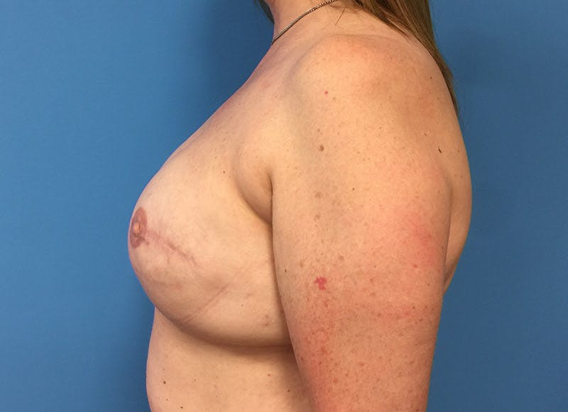 Breast Reconstruction - Implant Gallery - Patient 3833950 - Image 10
