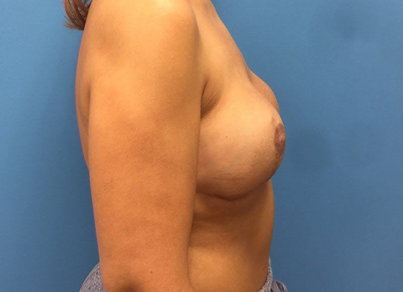 Breast Reconstruction - Implant Gallery - Patient 3833951 - Image 6