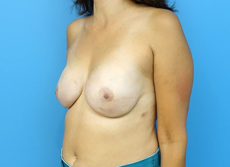 Breast Reconstruction - Implant Gallery - Patient 3833952 - Image 4