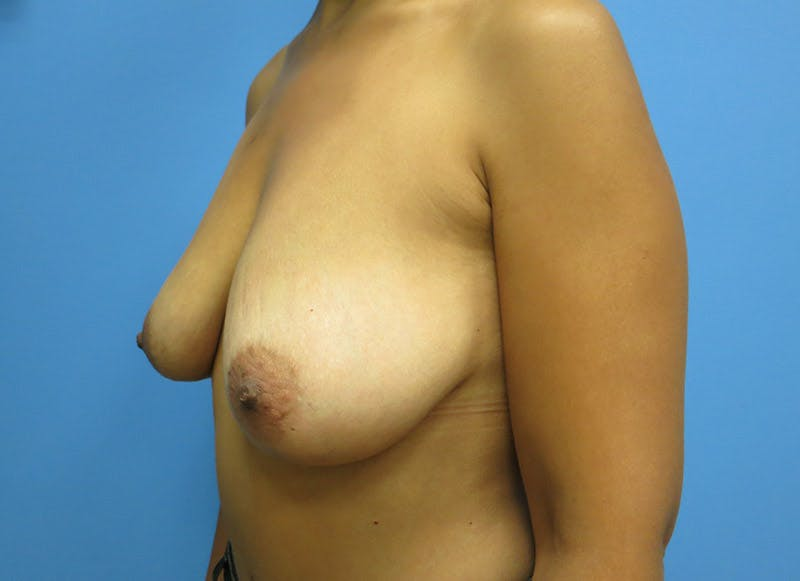 Breast Reconstruction - Implant Gallery - Patient 3833951 - Image 7