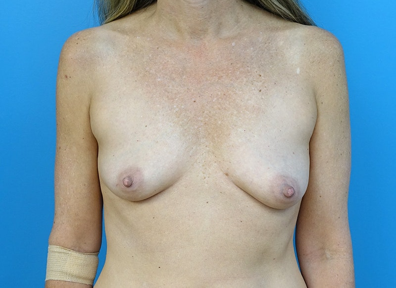 Breast Reconstruction - Implant Gallery - Patient 3833953 - Image 1