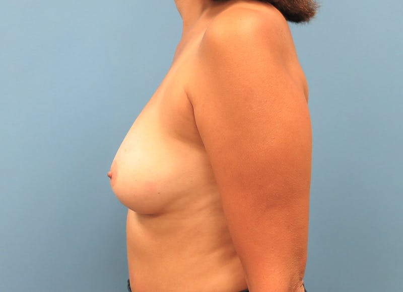 Breast Reconstruction - Implant Gallery - Patient 3833952 - Image 5