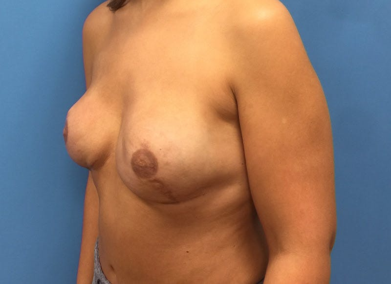 Breast Reconstruction - Implant Gallery - Patient 3833951 - Image 8