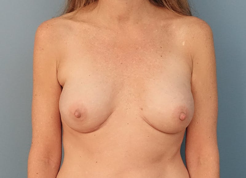 Breast Reconstruction - Implant Gallery - Patient 3833953 - Image 2