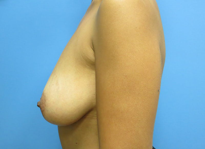 Breast Reconstruction - Implant Gallery - Patient 3833951 - Image 9