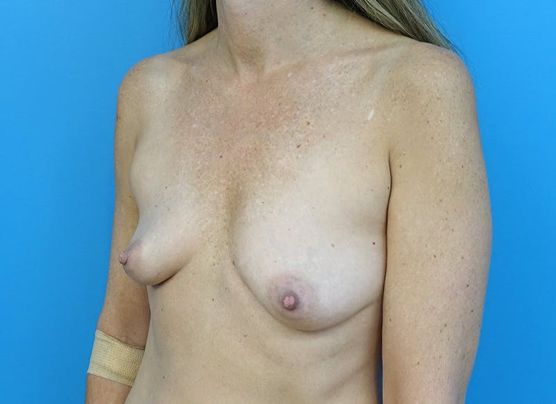 Breast Reconstruction - Implant Gallery - Patient 3833953 - Image 3