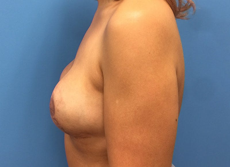 Breast Reconstruction - Implant Gallery - Patient 3833951 - Image 10