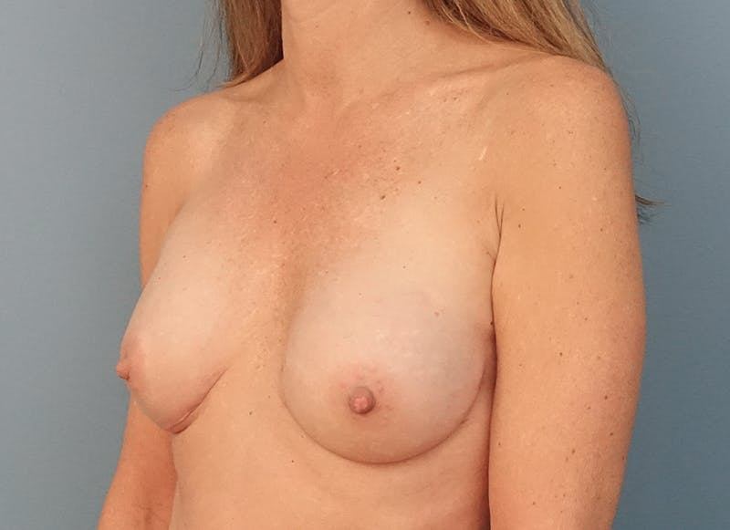 Breast Reconstruction - Implant Gallery - Patient 3833953 - Image 4