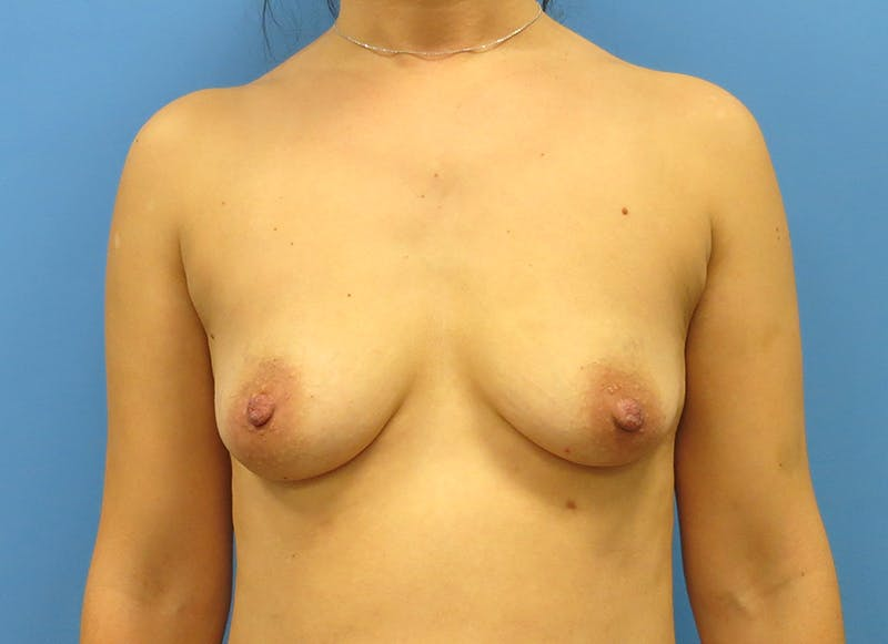 Breast Reconstruction - Implant Gallery - Patient 3833954 - Image 1