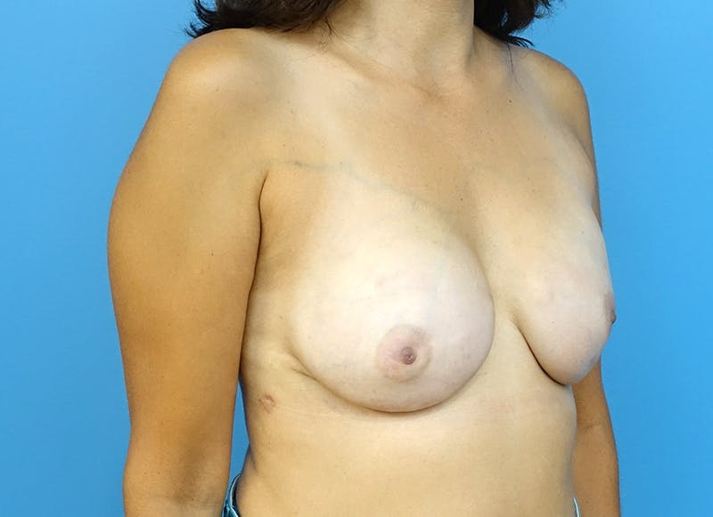 Breast Reconstruction - Implant Gallery - Patient 3833952 - Image 8