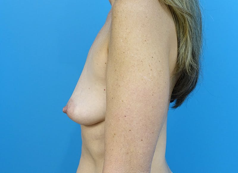 Breast Reconstruction - Implant Gallery - Patient 3833953 - Image 5
