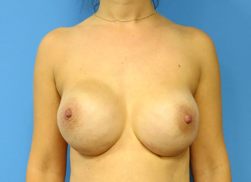 Breast Reconstruction - Implant Gallery - Patient 3833954 - Image 2