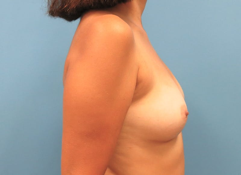 Breast Reconstruction - Implant Gallery - Patient 3833952 - Image 9