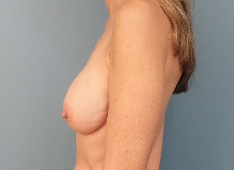 Breast Reconstruction - Implant Gallery - Patient 3833953 - Image 6
