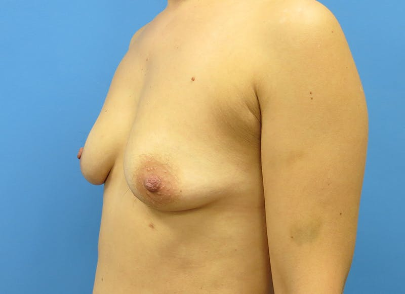 Breast Reconstruction - Implant Gallery - Patient 3833954 - Image 3
