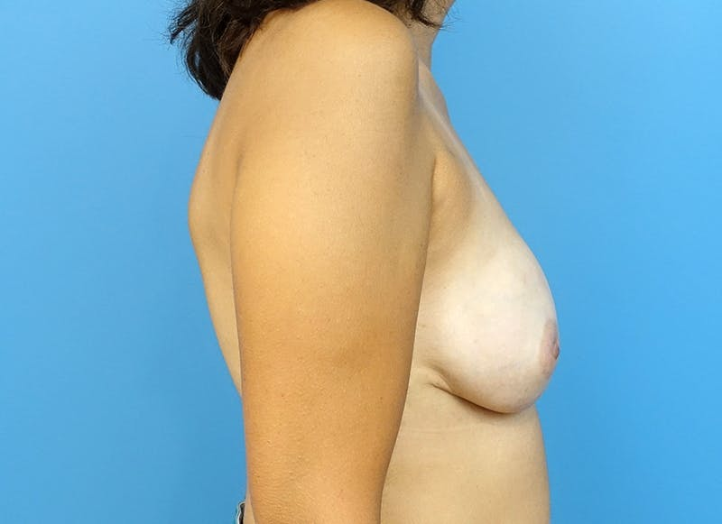Breast Reconstruction - Implant Gallery - Patient 3833952 - Image 10