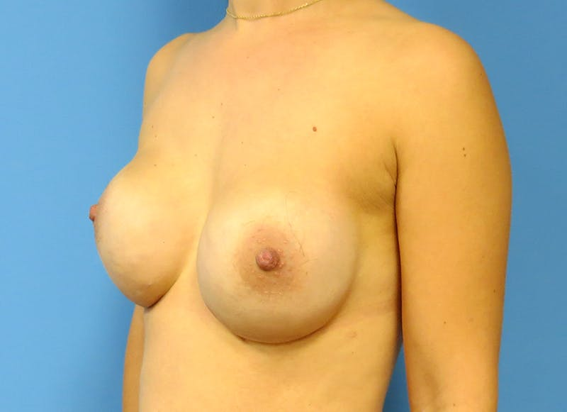 Breast Reconstruction - Implant Gallery - Patient 3833954 - Image 4