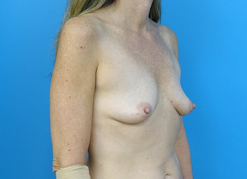 Breast Reconstruction - Implant Gallery - Patient 3833953 - Image 7