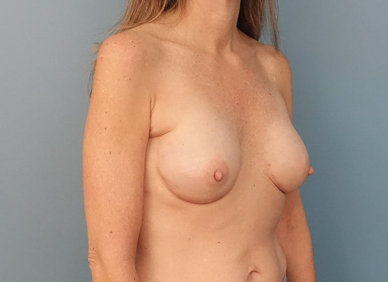 Breast Reconstruction - Implant Gallery - Patient 3833953 - Image 8