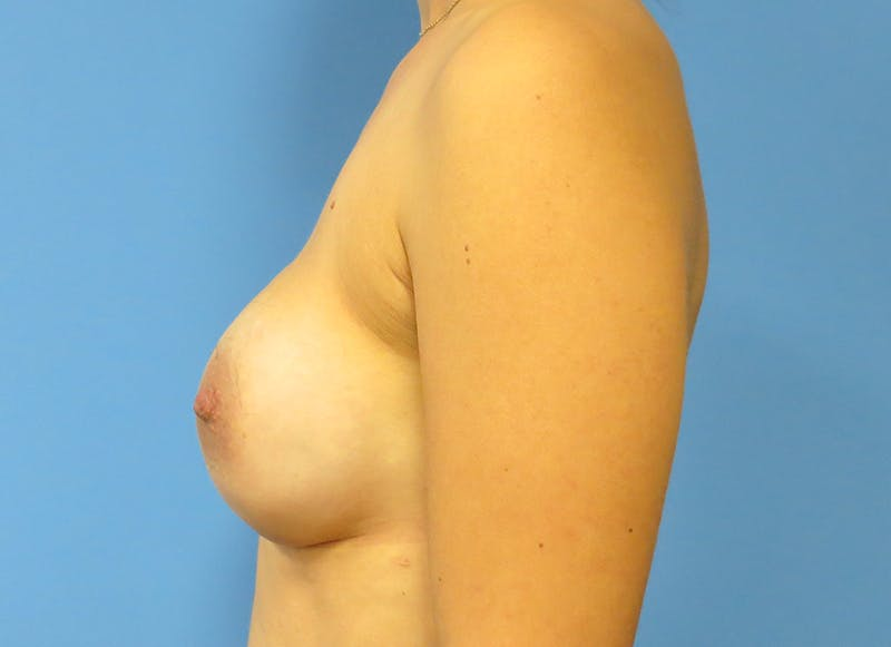 Breast Reconstruction - Implant Gallery - Patient 3833954 - Image 6