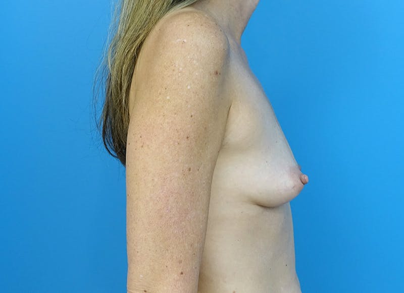 Breast Reconstruction - Implant Gallery - Patient 3833953 - Image 9