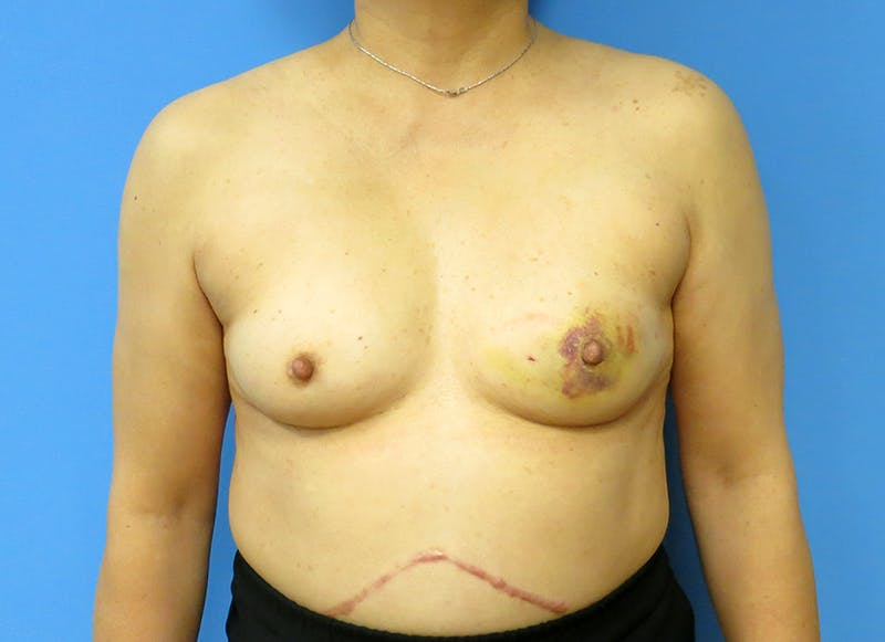 Breast Reconstruction - Implant Gallery - Patient 3833955 - Image 1