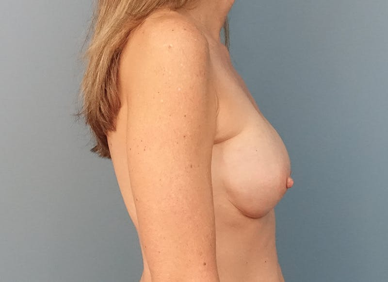 Breast Reconstruction - Implant Gallery - Patient 3833953 - Image 10