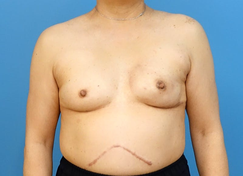 Breast Reconstruction - Implant Gallery - Patient 3833955 - Image 2