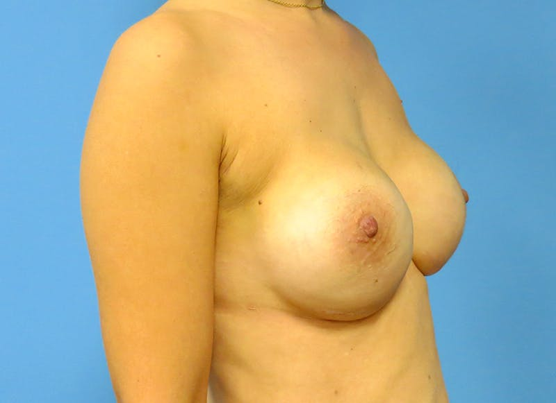 Breast Reconstruction - Implant Gallery - Patient 3833954 - Image 8