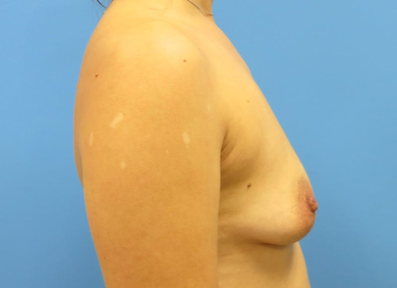 Breast Reconstruction - Implant Gallery - Patient 3833954 - Image 9