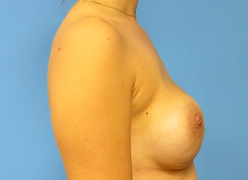 Breast Reconstruction - Implant Gallery - Patient 3833954 - Image 10