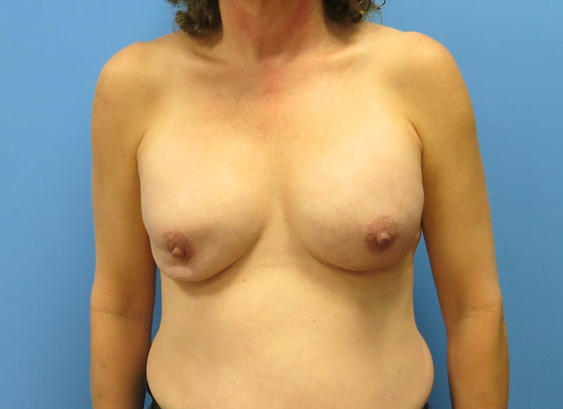 Breast Reconstruction - Implant Gallery - Patient 3833957 - Image 1