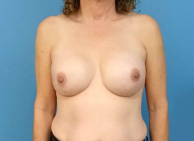 Breast Reconstruction - Implant Gallery - Patient 3833957 - Image 2