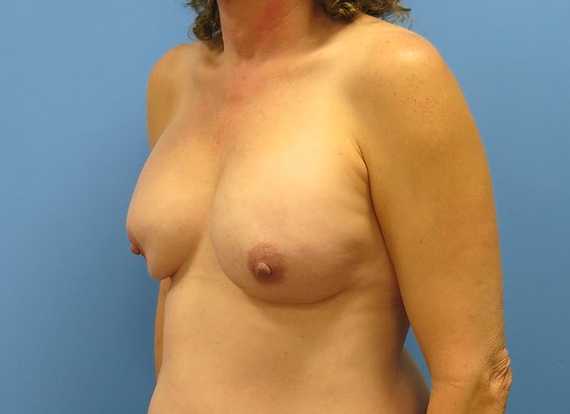 Breast Reconstruction - Implant Gallery - Patient 3833957 - Image 3